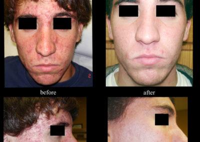 acne-1