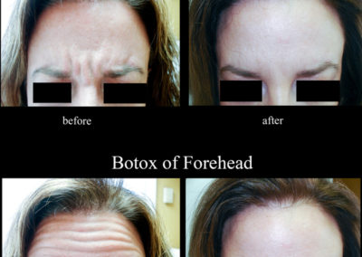 botox-5
