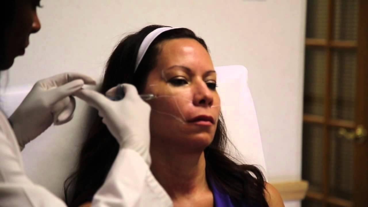 Cynthia Salter-Lewis M.D. – Voluma for Mid Face Lift