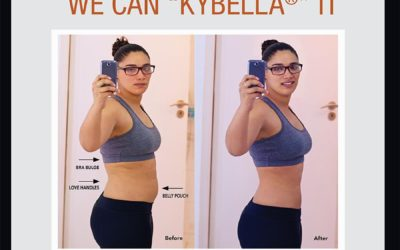"Dr. Cynthia Salter-Lewis Introduces Body Contouring with Kybella If You Can "" Pinch"" It… We Can ""Kybella"" It"
